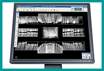 Dental X-rays Dentist Somerset NJ